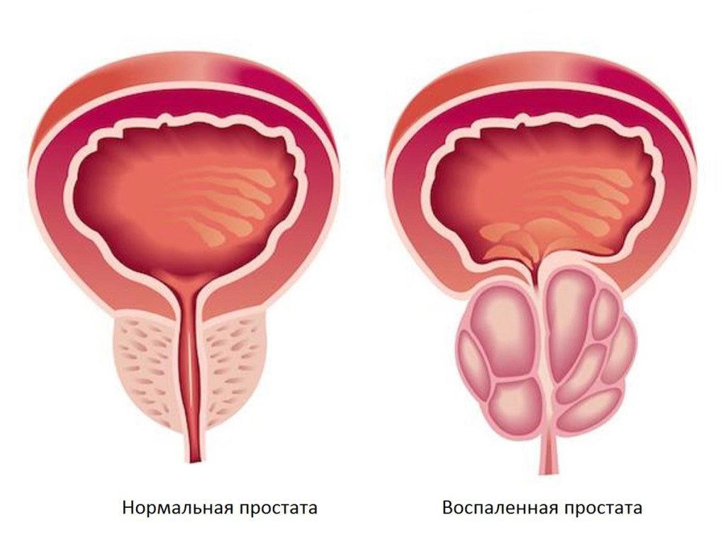 Препарат асд лечение простатита